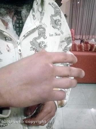 Pestaggio a Bolsena - Le ferite di Jaouad Ouboulmane