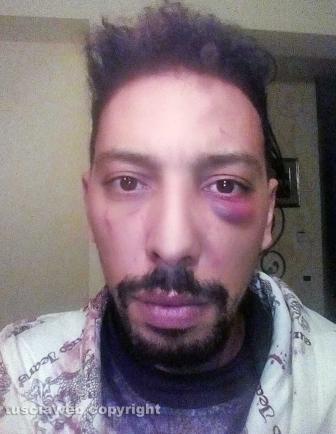 Jaouad Ouboulmane dopo il pestaggio