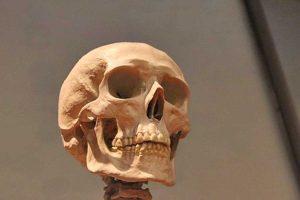 Un cranio