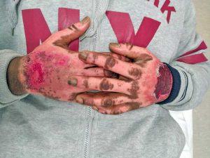 Viterbo - Le mani bruciate di Lamin