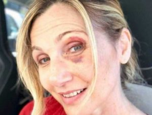 Lorella Cuccarini dopo l'incidente