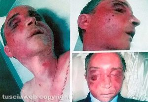 Viterbo - Omicidio del Suffragio - Daniele Barchi col volto tumefatto